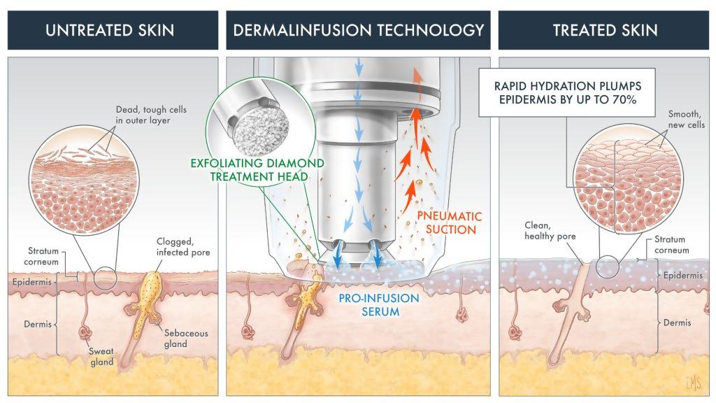 dermalinfusion